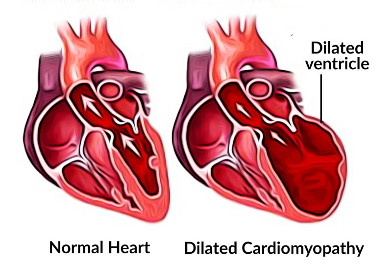 Dilated cardiomyopathy (DCM) in dogs and cats